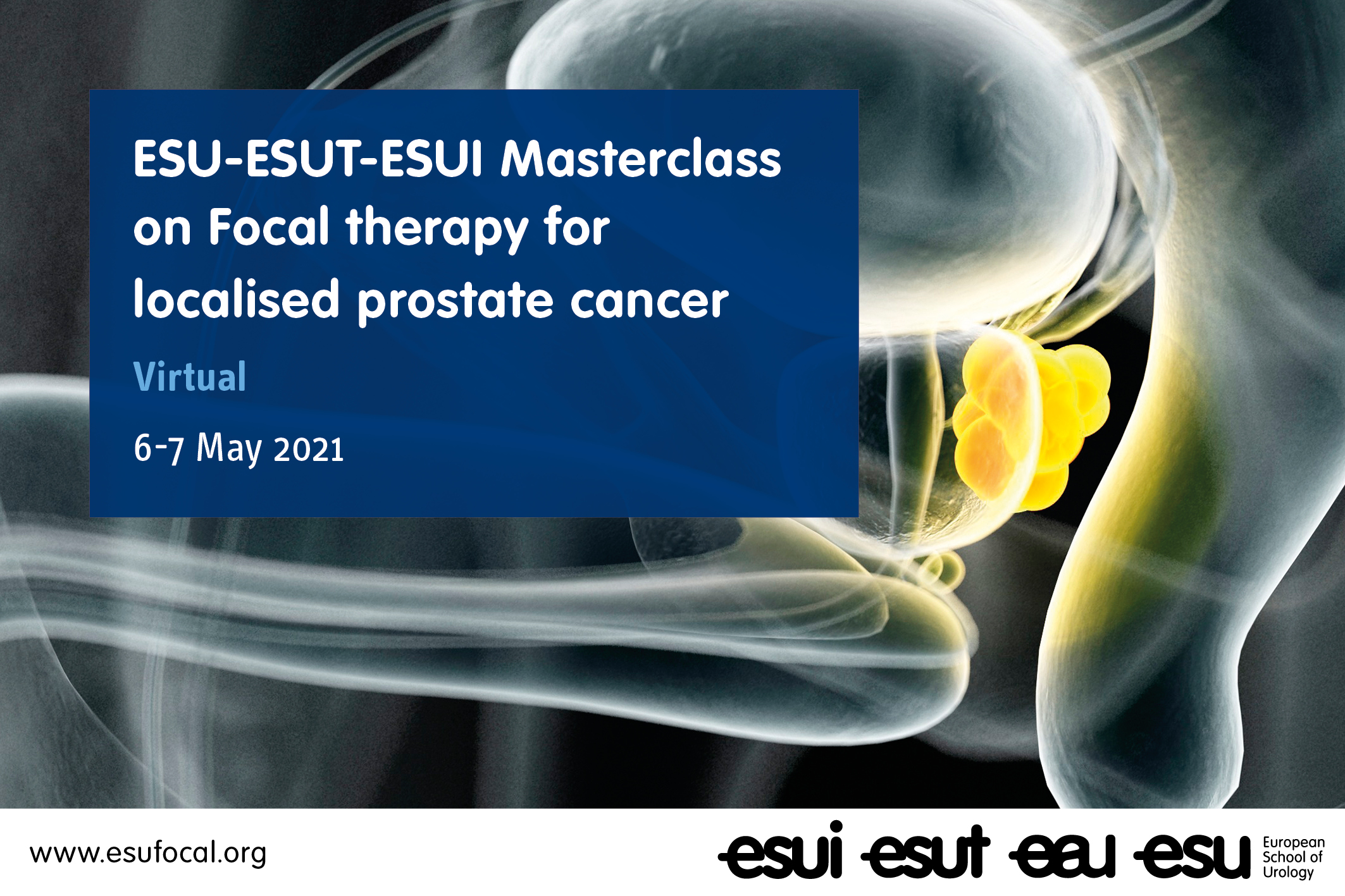 ESU-ESUT-ESUI Virtual Masterclass on Focal therapy for localised prostate cancer