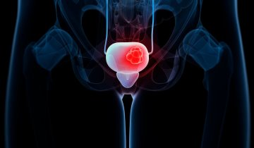 Masterclass on Non-Muscle-Invasive Bladder Cancer