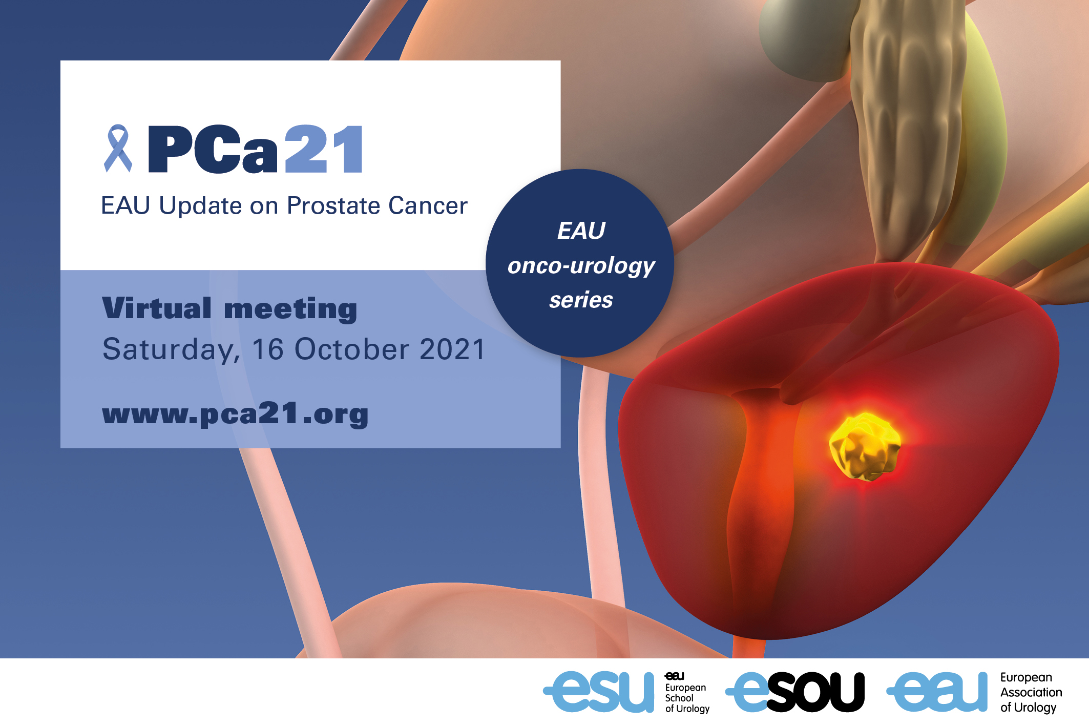 EAU Update on Prostate Cancer - PCa21